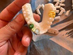 Estudantes de Odontologia recebem biomodelos de arcada dentária para treinar em casa