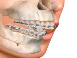 Bucomaxilo: saiba tudo sobre essa especialização odontológica