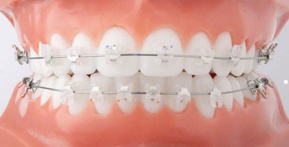 O que faz um ortodontista